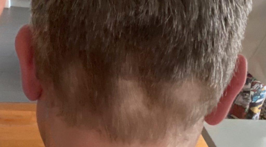 DIY Haircut gone wrong